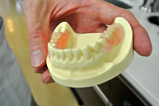 左海歯科クリニック 歯 模型